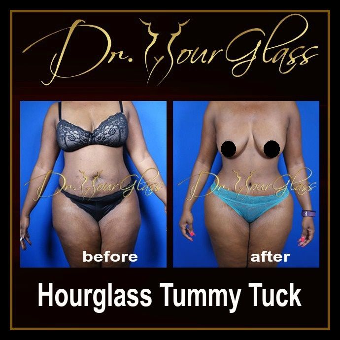 Do you want to achieve an hourglass shape without too much diet or exercise? Well, today there is Hourglass Tummy Tuck procedure which is designed by Dr. Hourglass to eliminate excess fat deposits on your abdomen in order to make it flat and firm, and at the same time sculpt your body into an hourglass shape. After the procedure you will look lovelier and sexier than before.