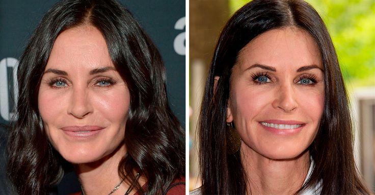 La actriz de 52 años, Courteney Cox, admite su adicción al relleno facial y lo ha dejado para siempre; hoy luce increíble y feliz de envejecer al natural