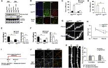 Loss of mTOR-Dependent Macroautophagy Causes Autistic-like Synaptic Pruning Deficits: Neuron
