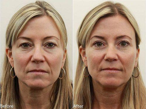 Branson eyelid surgery and non-surgical procedures.  #juvederm #eyelift #blepharoplasty #eyelid surgery
