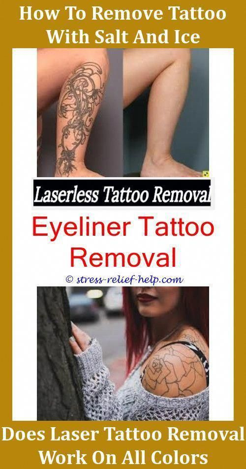 Tattoo Excision What Is Tattoo Removal Like Custom Temporary Tattoos