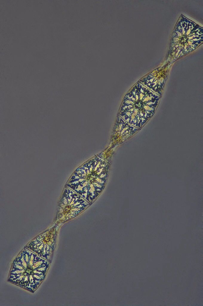 A twisted strand of diatoms called, Helicotheca (syn. Streptotheca) tamesis. By Franz Neidl