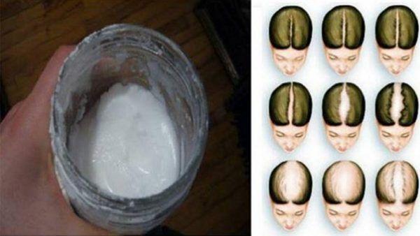Szódabikarbóna sampon: úgy nő majd a hajad, mintha húznák