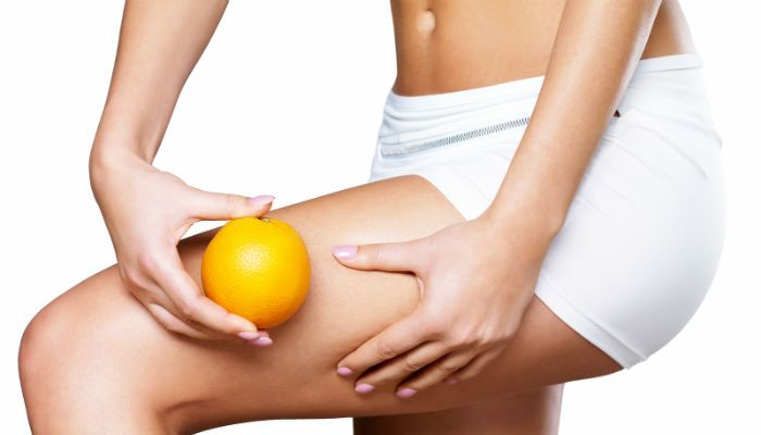 True or False: Myth-Busting Facts About Cellulite. With over 90% of women affected by cellulite in their lifetime, cellulite is one of the most common body issues that women face. Since it is so common, there are a lot of myths about what causes it and how to treat it. In this article, we will reveal the facts about some of the top cellulite myths. #cellulite #skincare #beauty #skin #diet