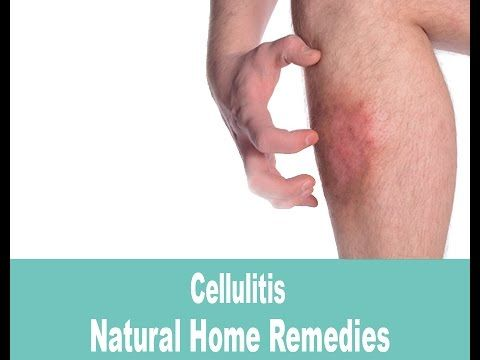 Cellulitis Infection Treatment With Home Remedies - YouTube