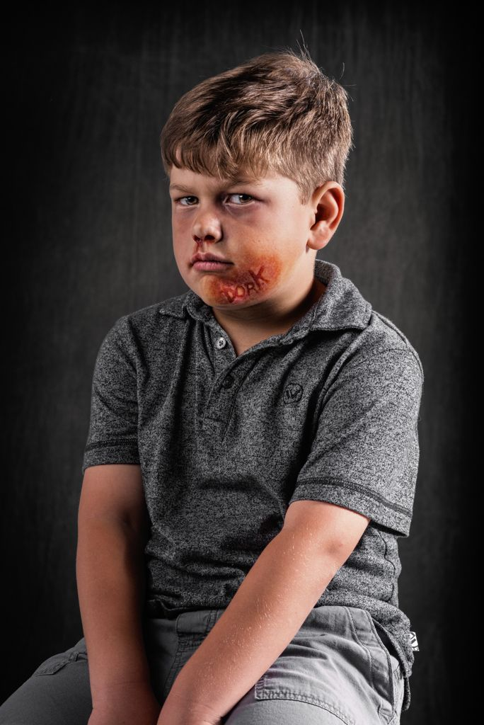 Best Controversial Art Images On Pinterest Board Words And - Extremely powerful photo project shows effects verbal abuse
