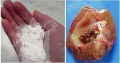 Cómo reparar su riñón dañado naturalmente usando sólo bicarbonato de sodio.