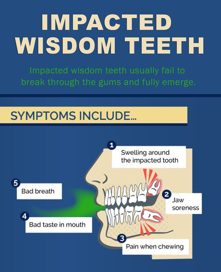 Impacted wisdom teeth usually fail to break through the gums and fully emerge. When wisdom teeth are unable to fully erupt, pain can develop with the onset of inflammation, infection or damage to the adjacent teeth.