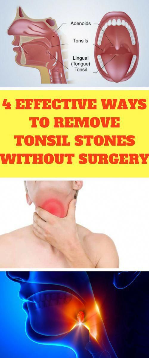 The Small White Spots You Can See On Your Tonsils At The Back Of The