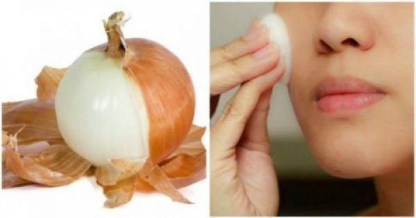 Υγεία - Αν γνωρίζατε ότι κάτι που συνήθως πετάτε έχει πολλά οφέλη, θα αρχίζατε να το φυλάτε; Οι φλούδες του κρεμμυδιού είναι γνωστές ότι έχουν πολλές ωφέλειες για