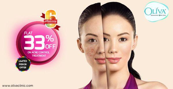 Oliva Clinic's Bangalore Offer Flat 33% Off on Acne Control Treatment  https://www.olivaclinic.com/blog/pimple-treatment-offer-in-bangalore/