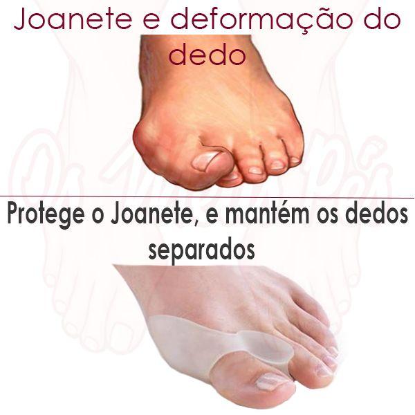 Protector e Corrector de Joanetes em Gel, protege joanete das agressões do sapato enquanto corrige e alinha o dedo grande do pé. Evita a evolução do Joanete
