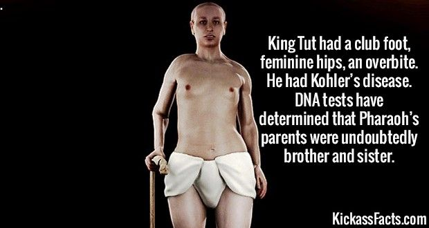 2575 King Tut-King Tut had a club foot, feminine hips, an overbite. He had Kohler's disease. DNA tests have determined that Pharaoh's parents were undoubtedly brother and sister.