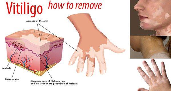 vitiligo familiær autoimmun sygdom symptomløs, symmetrisk anordnede, depigmenterede område. primært på hænder, knæ, hals, omkring øjne og mund.  Associeret til andre autoimmune sygdomme. Iritis, thyroideasygdom. beh: lokal steroid, smalspektret UVB - nogen succes!