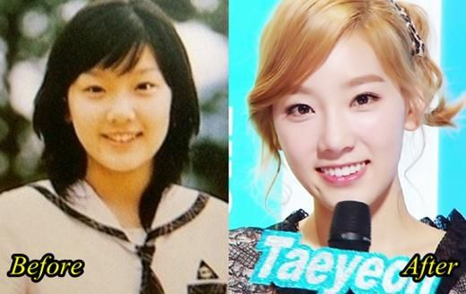 Taeyeon SNSD Plastic Surgery Kim Taeyeon Snsd Plastic Surgery Before And After Picture Im Yoona Natural Beauty