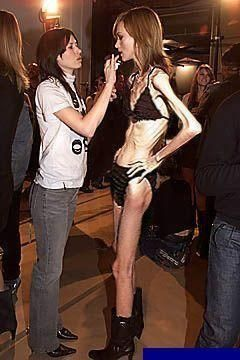 this would have to be one of the most disgusting pictures i have ever seen. this is not skinny this is the living dead.: