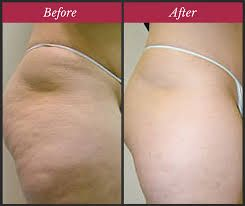 How to use dry brushing to remove cellulite and toxins out of the body #cellulite #health