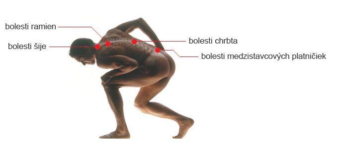 Toto je veľmi účinný recept na odstránenie bolesti chrbta, kĺbov a nôh za 7 dní   Chillin.sk