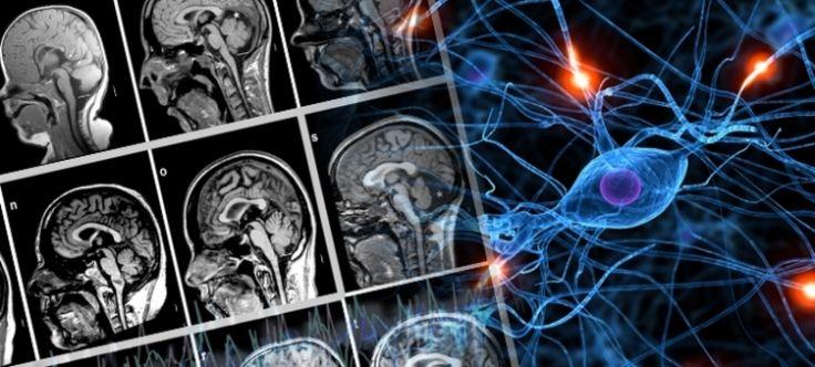 El cannabis reduce el dolor y el consumo de opiaceos según un estudio clínico - http://growlandia.com/marihuana/el-cannabis-reduce-el-dolor-y-el-consumo-de-opiaceos-segun-un-estudio-clinico/