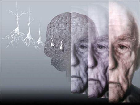 Cronaca: #Alzheimer #scienziati #italiani scoprono novità sulla malattia (link: http://ift.tt/2nE2g0r )