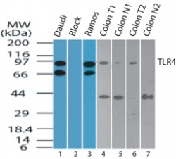 TLR4 IMG-6285A Western blot image in daudi cells, absence, and presence of immunizing peptide, ramos cells, human colon tumor lysate, normal colon lysate.