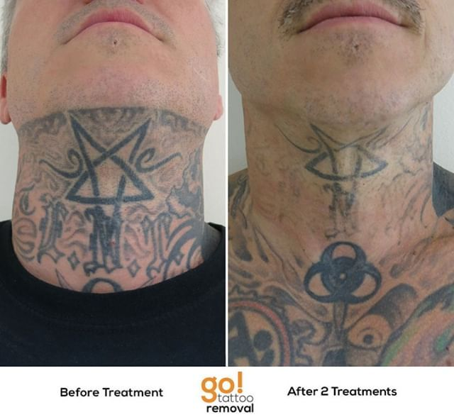 Making Really Nice Progress Removing This Full Neck Piece For A Client Shown Here Is The Center Section Of The Laser Tattoo Removal Tattoo Removal Laser Tattoo