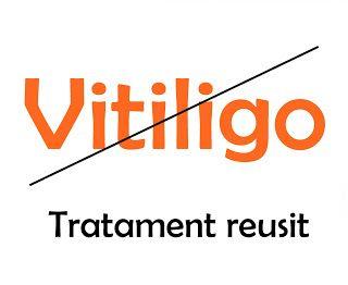 Tratament reusit vitiligo pe fata si corp spasmofilie latenta
