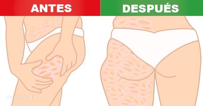 grasa debajo de la piel