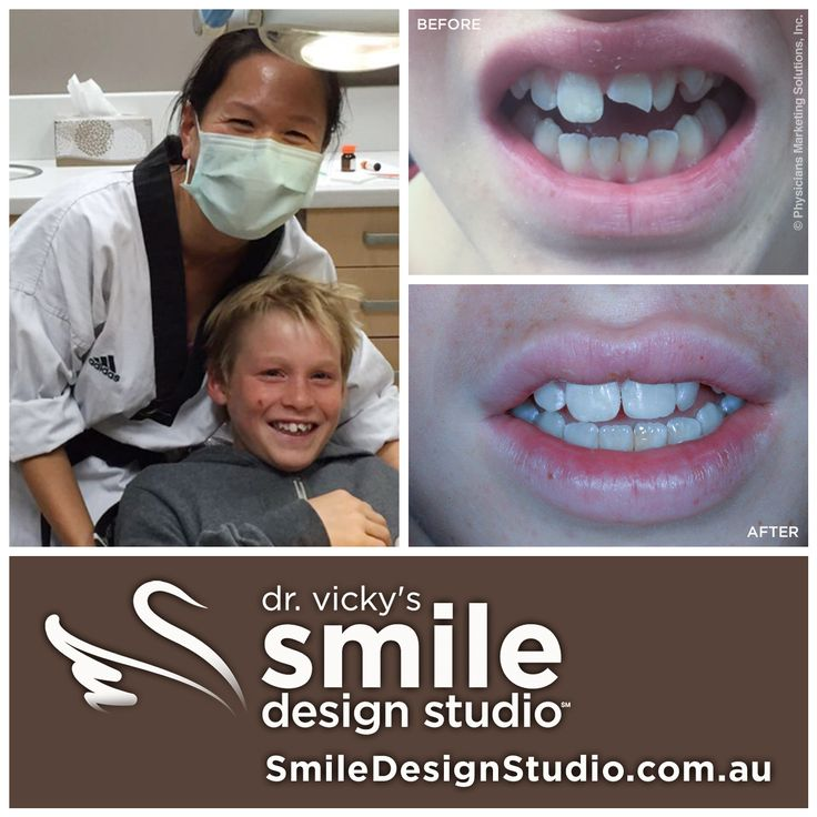 No matter what time of day Dr. Vicky is dedicated to looking after her clients.  Late night call in from taekwondo class to save young Josh's tooth broken from a sporting accident. No! She didn't knock it out ! www.smiledesignstudio.com.au ‪#‎DentalHeathTip‬ ‪#‎DrVickyHo‬ ‪#‎perth‬ ‪#‎australia‬ ‪#‎smiledesignstudio‬ ‪#‎dentalpractice‬ ‪#‎confidence‬ ‪#‎cosmeticdentistry‬ ‪#‎dentaljob‬ ‪#‎mosmanpark‬ ‪#‎stirlinghighway‬ ‪#‎tmj‬ ‪#‎dentistryservices‬ ‪#‎implantdentistry‬ ‪#‎invisalign‬