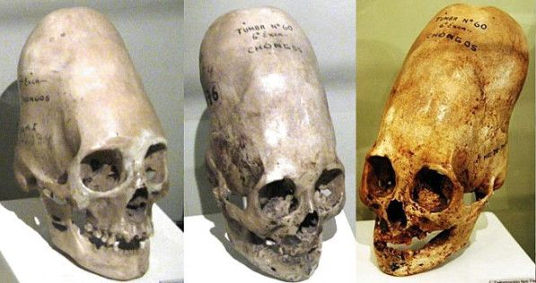 "The Paracas Skull: Aliens, Unknown Hominid Species or Simply Cranial Deformation - Nice article on how the ""controversy"" of the Paracas skulls has been distorted and that much of what you read online is false"