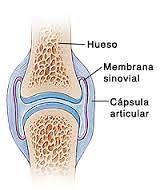 Definición La membrana sinovial (MS) recubre la superficie interna de la cápsula articular fibrosa y sólo 4 células profundas. Tiene una superficie discontinua y no está conectada a una membrana basal; por lo tanto, la membrana sinovial no es un epitelio. Tiene muchos vasos sanguíneos, nervios y vasos linfáticos. El líquido sinovial (LS), es producido por la membrana sinovial, que lubrica la superficie articular de la articulación y proporciona nutrientes al cartílago articular. El líquido…