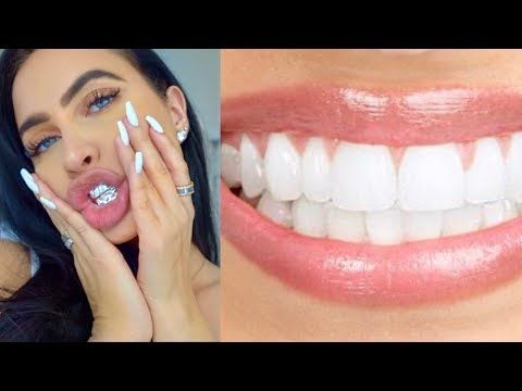 how to get super white teeth naturally