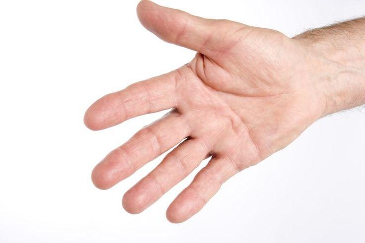 Atrofia muscular en la mano | Muy Fitness