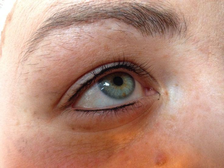 Eyelash Enhancement