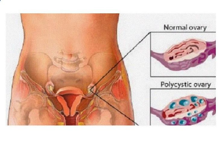 Clean The Ovary Cysts With The Best Recipe. Reduce Bloating, Lower Abdominal and Lower Back Pain