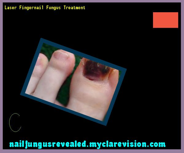 Laser fingernail fungus treatment - Nail Fungus Remedy. You have nothing to lose! Visit Site Now
