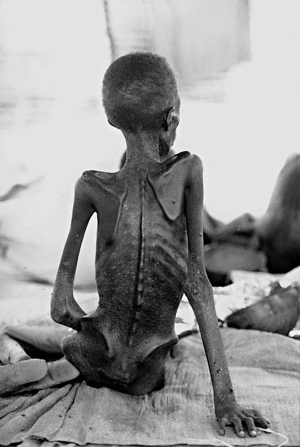 Poverty & hunger (will increase throughout the world with droughts and pestilence). very sad image