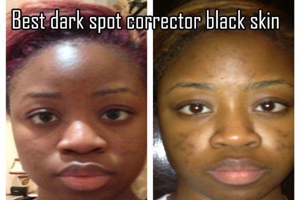 Black Skin Dark Spot Corrector Darkspotcorrector Skinwhiteningmask Makeupcollection Skin Care Dark Spots Best Dark Spot Corrector Black Skin Care Dark Spots