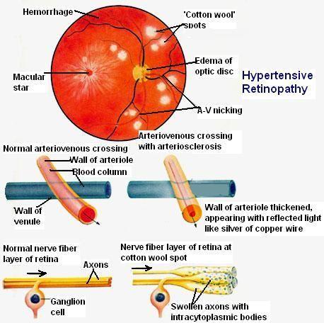 Diagram showing changes in Hypertensive Retinopathy.- Eye Pathology Online
