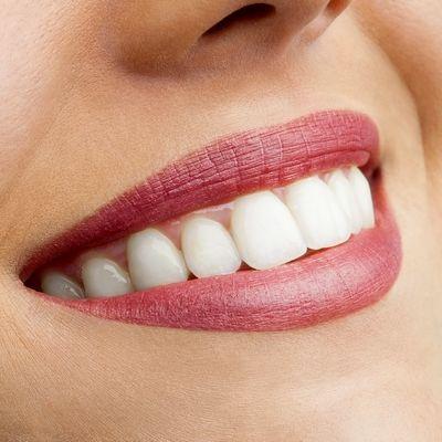 Így fehérítsd ki a fogsorod otthon, 2 perc alatt