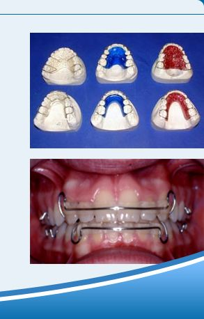 Types of Removable braces - Retainers