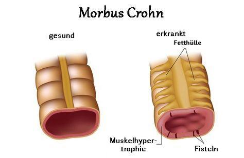 Morbus Crohn – Symptome und Behandlungsmethoden