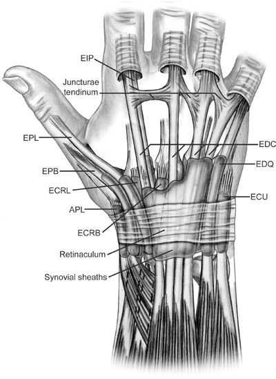 extrinsic extensor tightness medical dictionary