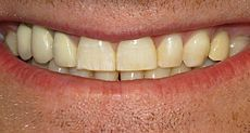 Dental fluorosis// Many well-known sources of fluoride may contribute to overexposure including dentifrice/fluoridated mouthrinse (which young children may swallow), bottled waters which are not tested for their fluoride content. .Exposure to other fluoride sources such as brick tea or pollution from high fluoride coal.