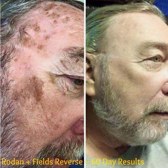 Rodan and Fields Reverse regimen before & after!