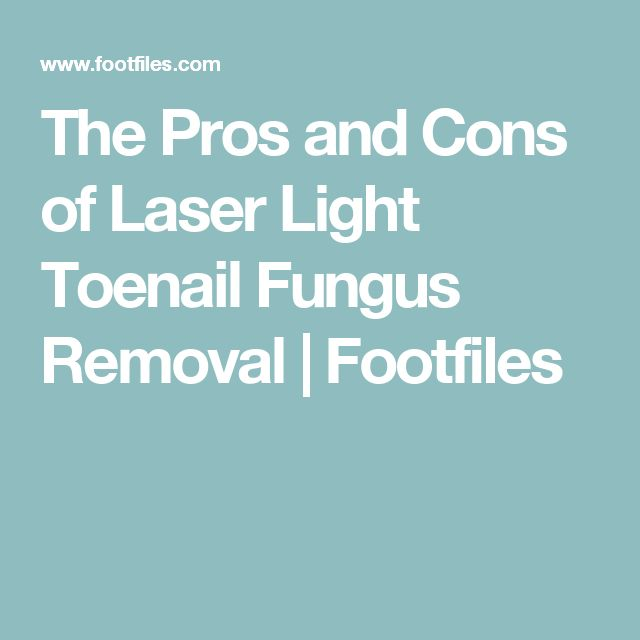The Pros and Cons of Laser Light Toenail Fungus Removal | Footfiles