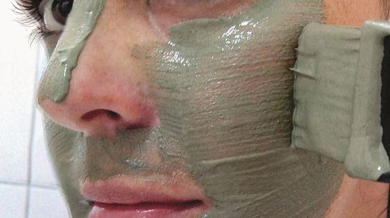 Máscara milagrosa para melasma e manchas no rosto:  1 tijela de vidro; 1 colher de pau; ponha 2 colheres (de sopa) de argila verde, 1 colher (de sopa) de leite de magnésia e um pouco de água mineral. Mexa até ficar uma pasta nem muito fina nem muito grossa; Antes de aplicar a máscara, lave o rosto com sabonete neutro. Aplique-a no rosto, menos na área dos olhos. Espere 30 minutos. Lave bem o rosto com água para retirar toda a máscara.