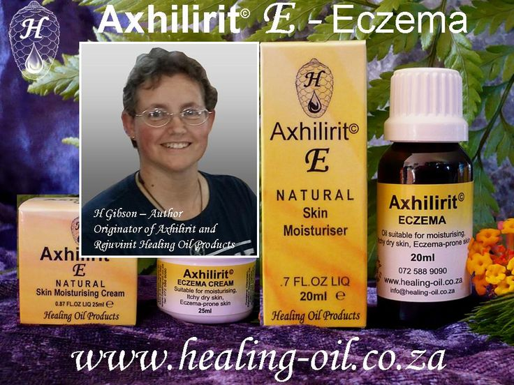 Third Degree Burns lead to breakthrough in Eczema Treatment   How my 3rd degree burn accident led to the development of a unique product that works for ECZEMA. www.healing-oil.co.za
