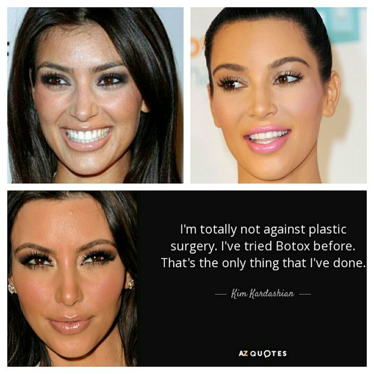 Kim Kardashian  - fake forehead (lasered hair away), eyelifting, nose job, lip injection, different cheeks, chin implant & different teeths