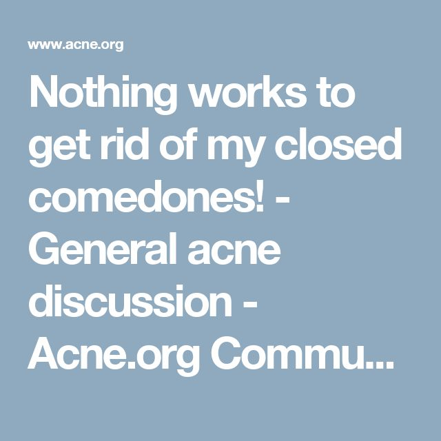 Nothing works to get rid of my closed comedones! - General acne discussion - Acne.org Community